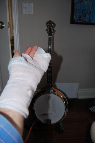 Broken pinky cast